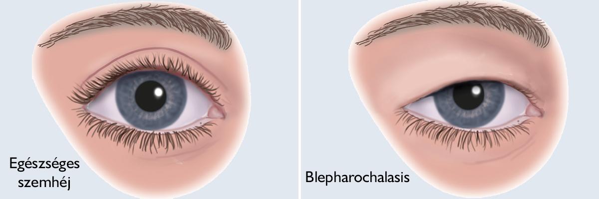 Zöldhályog {glaukóma} típusai, szűrővizsgálat, kezelés
