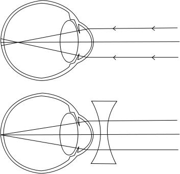 hyperopia myopia segítség vakok látórendszerei