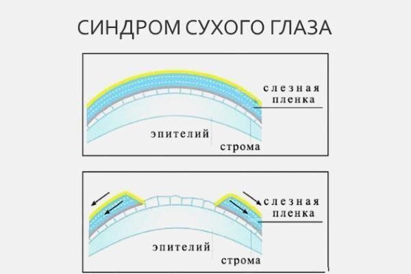 A rövidlátás helyreállítása Zhdanov által