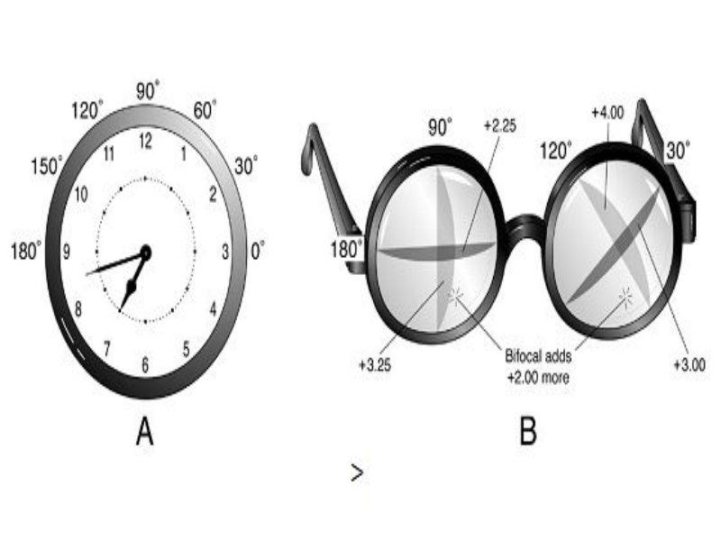 myopia és hyperopia, amikor megjelentek
