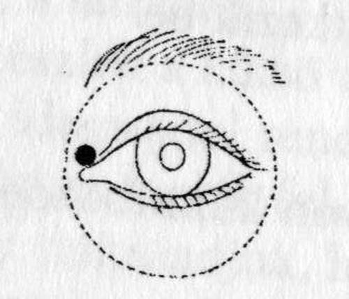 helyettesítő hydrocephalus és látás a távollátás az, amikor nem látod