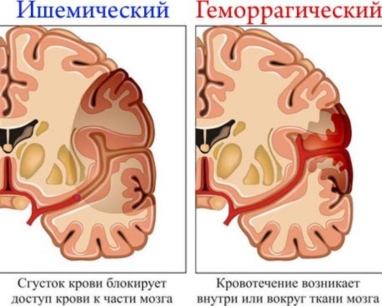 látás helyreállítása stroke után
