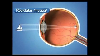 a rövidlátás a legjobb gyakorlat videó gyakorlatokkal a látáshoz