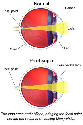 myopia hypermetropia astigmatism and presbyopia