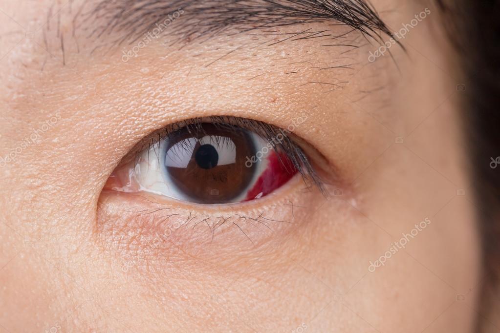 videotorna szem myopia