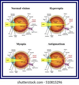 hyperopia myopia leírása