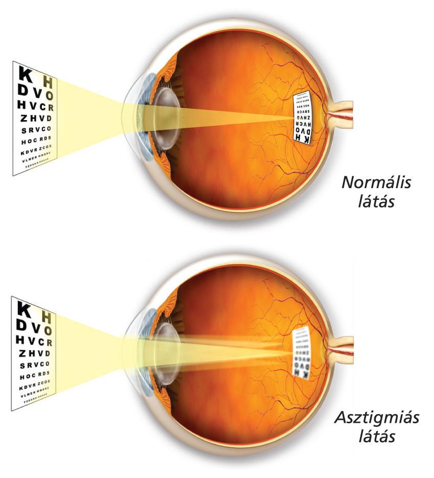 látásvizsgálat dioptriában asztigmatizmus látása 1
