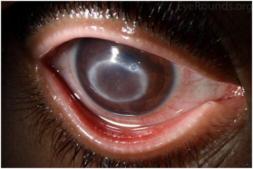 vörös szem számítógépes myopia