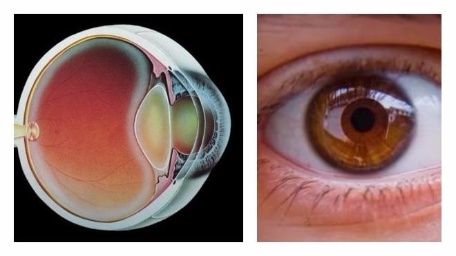 a látószerv megsértése gyermekek myopia hyperopia esetén normális látás vagy sem