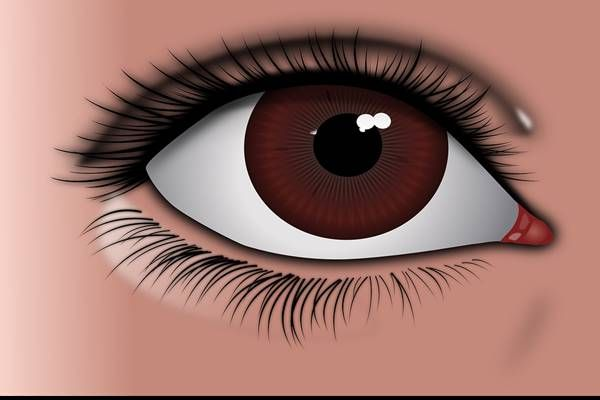 Vastag szemüveg - Betegség August