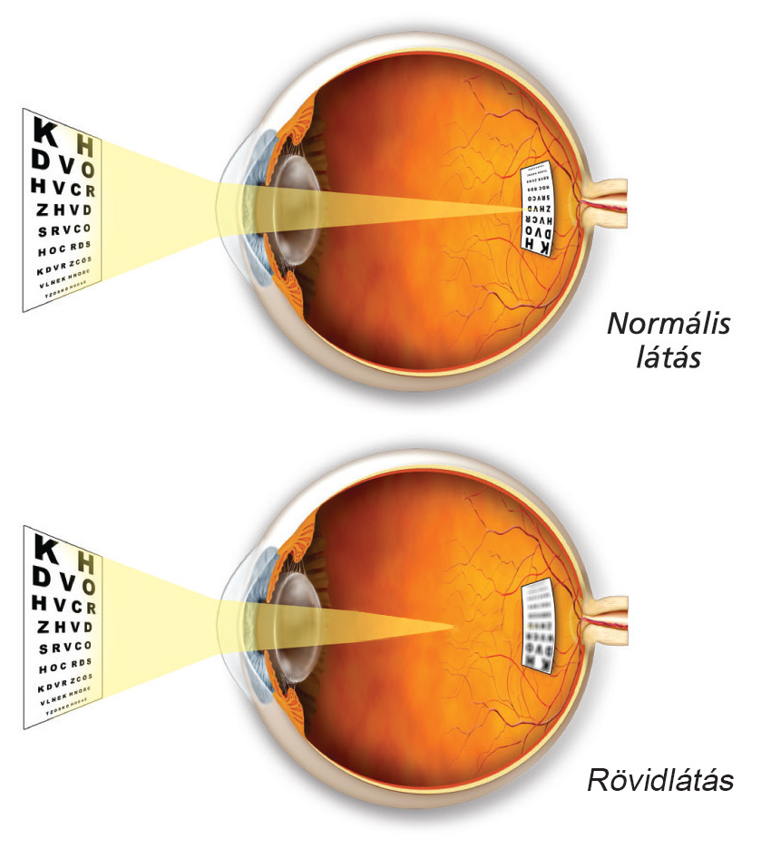 Rövidlátás (myopia)