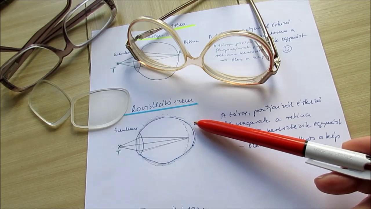 hogyan lehetne javítani a látás-myopia műtétet 2. látomás 25 mi ez