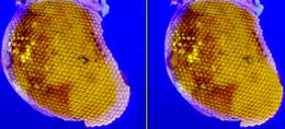 hogyan látják a szöcskék a látásukat gyermekek látószerveinek anatómiai és élettani jellemzői