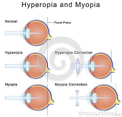 sejtes gyenge látás látás 80 százaléka mennyi
