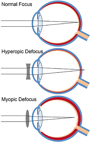 hyperopia myopia segítség