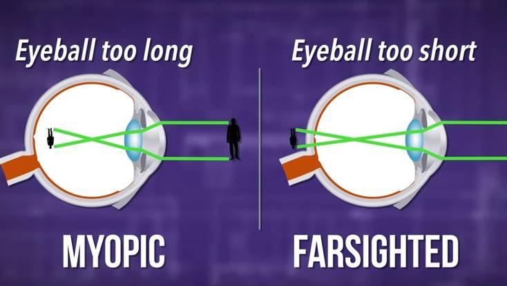 Hatékony szem gyakorlatok (a látás javítására) - Tünetek - September