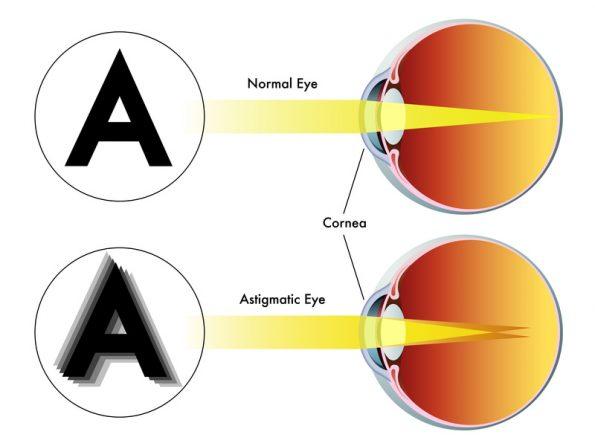gyenge látás asztigmatizmussal