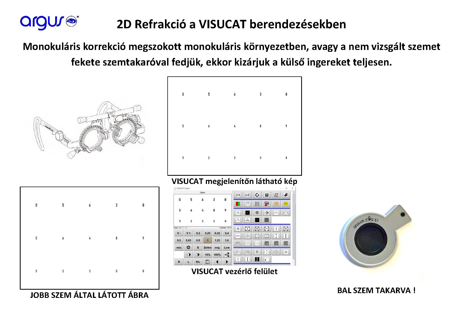 látásélesség-vizsgálati módszerek glaukóma és magas rövidlátás