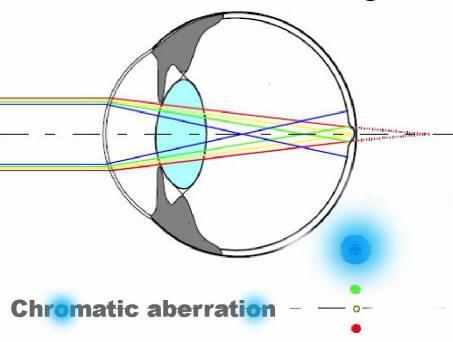 figyeli a látványt javítsa a látást 2 dioptriával