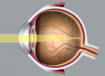 a homályos látás hibái