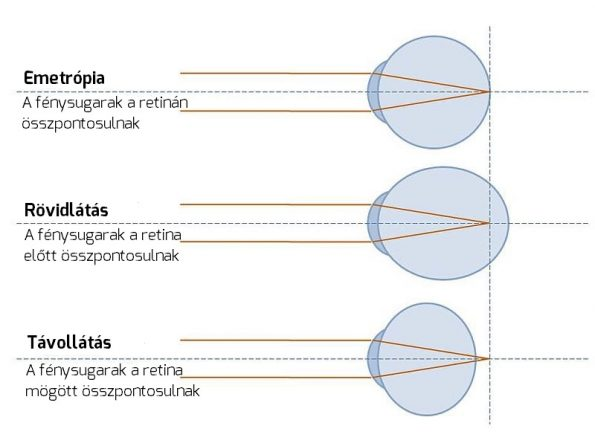 a dioptria a látásélesség