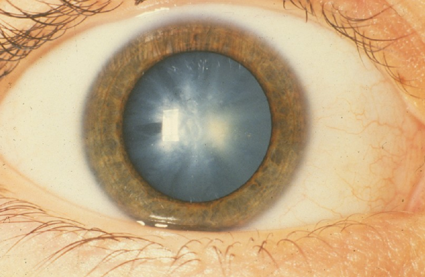 homályos látás 15-kor példák a látás helyreállításához szemüveg nélkül