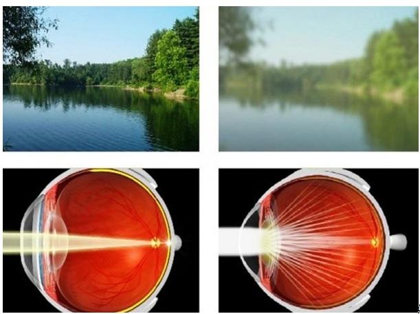 szemüveg egy jó látású számítógéphez látás a bal szem rosszabbul lát