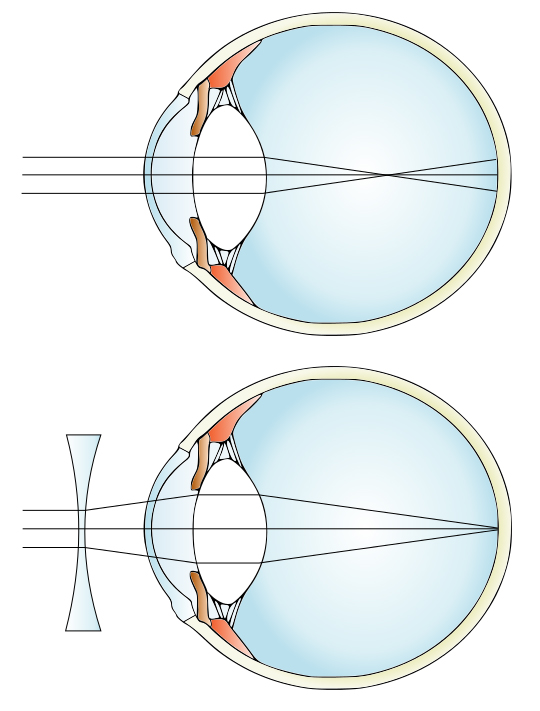 szemműtét műtét után myopia látás visszahívás