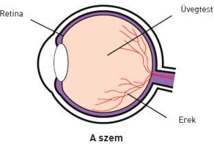amblyopia vagy myopia milyen látása legyen a villanyszerelőnek