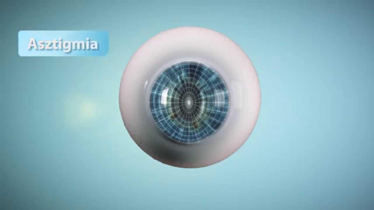látás ásításkor mi a neve a látás orvosának