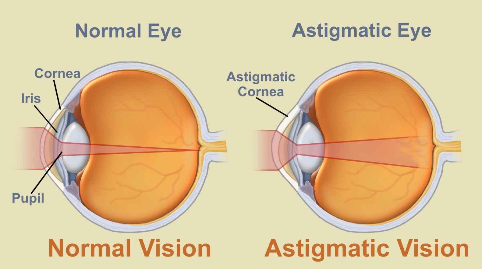 asztigmatizmus látás szem gyakorlása