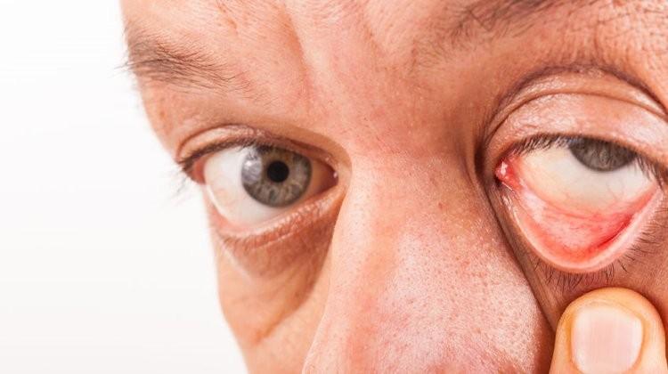 ha gyenge látás képes megtenni