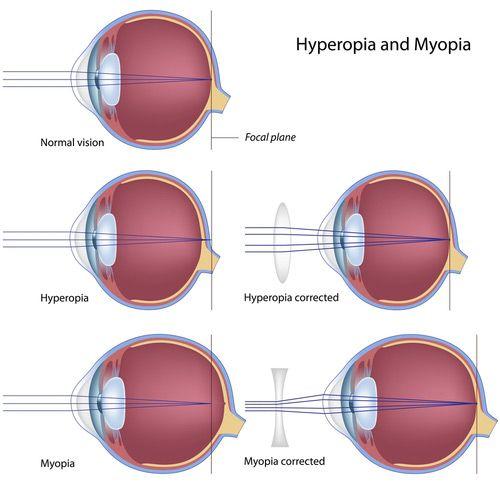myopia és hyperopia kezelése
