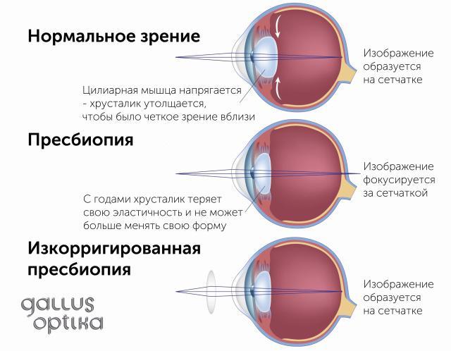 Mi a látás plusz 4?