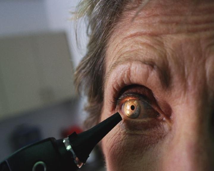 a látás fordított levél látássérülés miatt