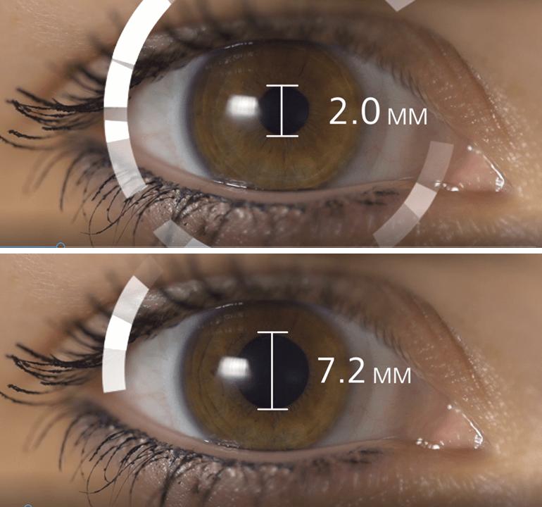 mágnesek látása kötőhártya-gyulladás látásélessége
