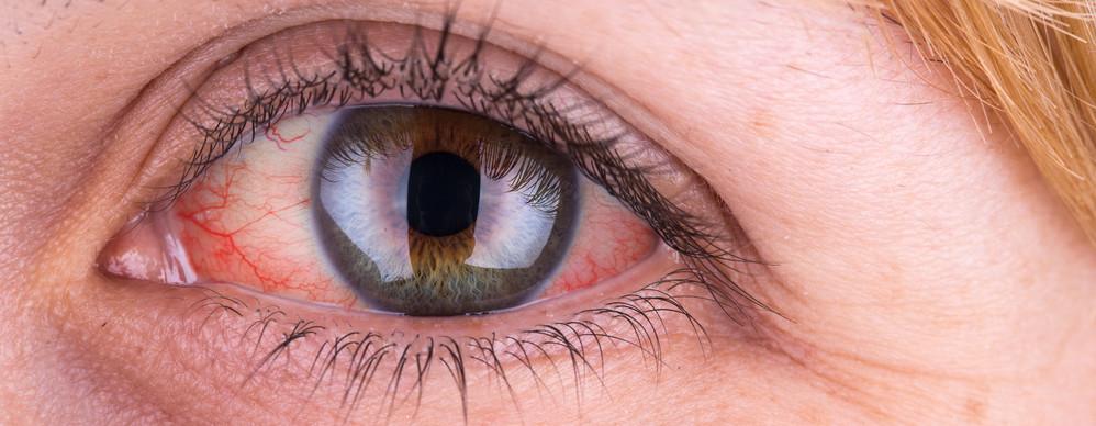 az egyik szem hirtelen látásvesztése