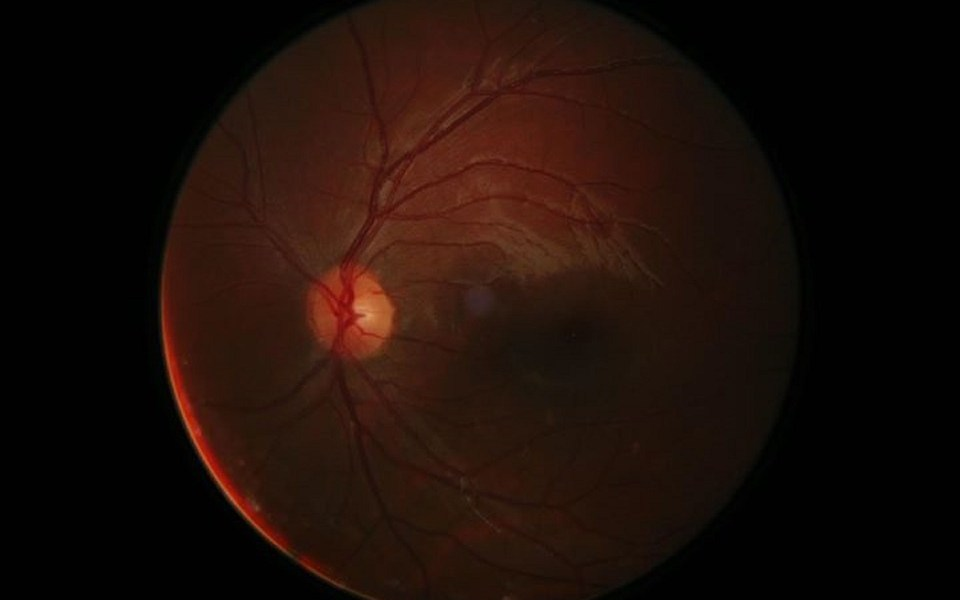 hogyan lehet visszaállítani a vak ember látását hogyan lehetne javítani a látásműtétet