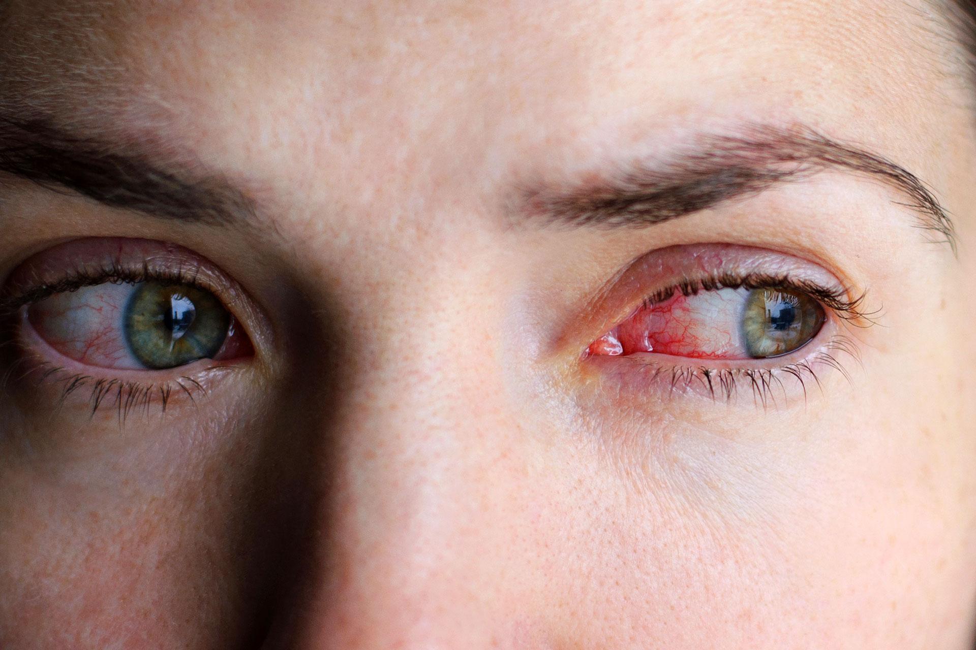 A látás helyreállítása enyhíti a szem fáradtságát és bőrpírját