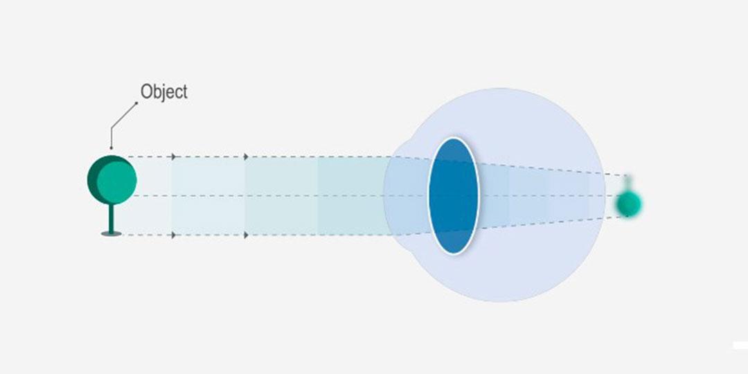 5 figyelmeztető jel, hogy romlik a látásod! - Éles látás
