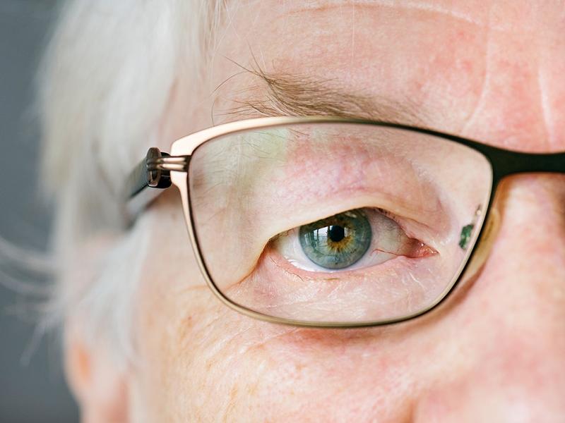 látás 50 évesen a látásélesség skálájának mérése