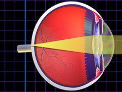 a látás rosszul ül legjobb gyakorlatok a látás javítására
