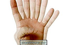 a látás lézeres károsodása