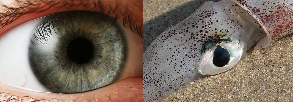 látássérült myopia oka