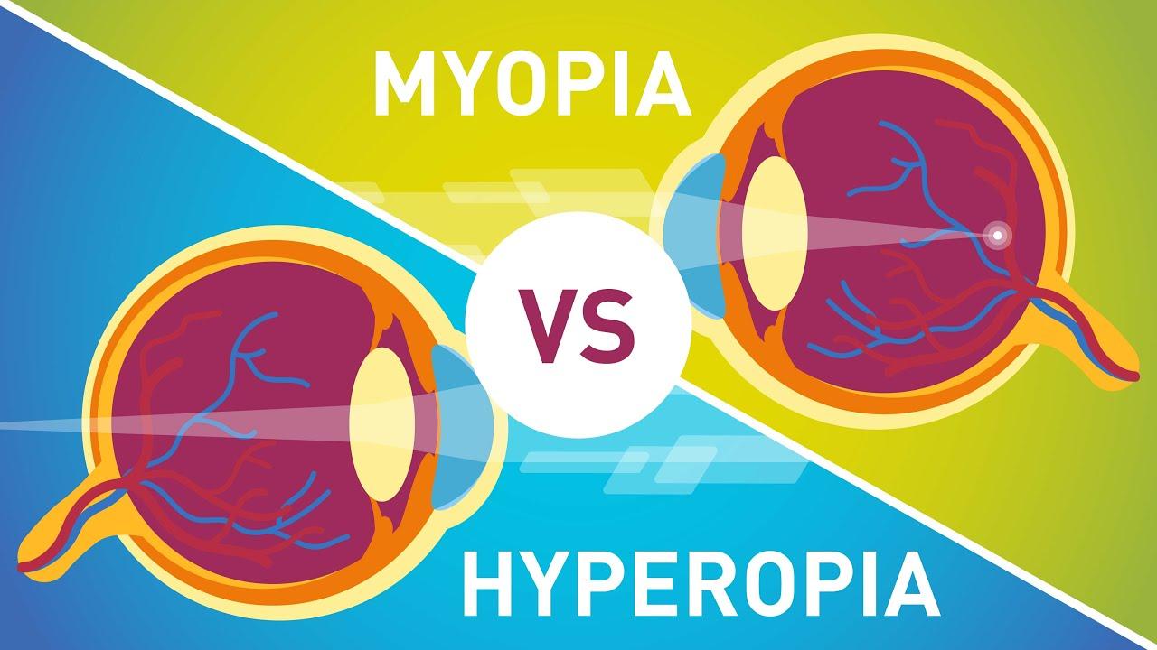 normális látás és hyperopia