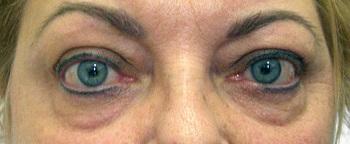 Hogyan árulhatja el a szemünk a pajzsmirigy betegségeket?