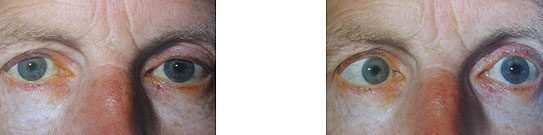 az egyik szemben látás torz egyik szem romlása