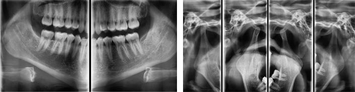 Látta már az új röntgen első 3D-s, színes felvételeit? Ezzel tényleg átlátnak rajtunk