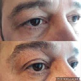 a felső szemhéj tompítása rövidlátással
