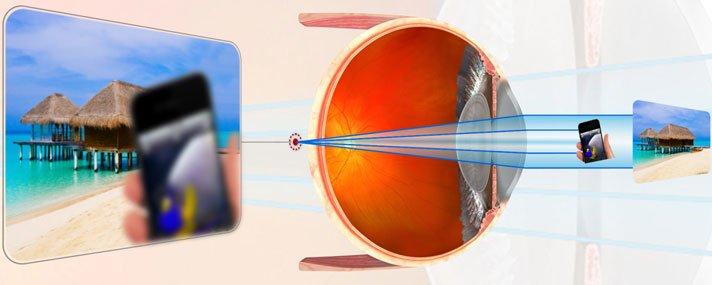 hyperopia szemüveg rövidlátás kezelésére mi ajánlott a látáshoz